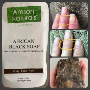 repair dry cracked hands with black soap