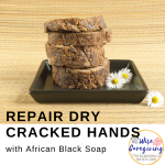 repair dry cracked hands